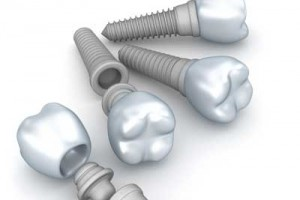 how dental implants work from Gregorin Dental in Anchorage, AK